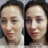 Фото до и после круговой блефаропластики у доктора Екимова