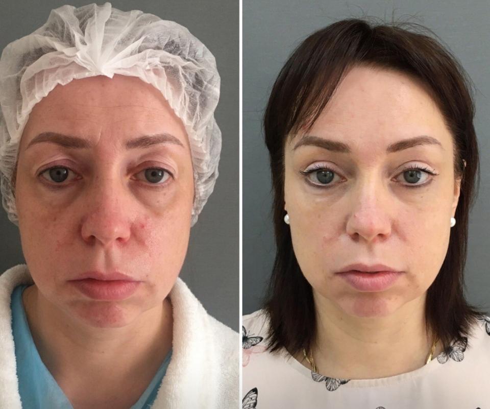 Пациентка до и после комплексного омоложения у доктора Марины Четвериковой