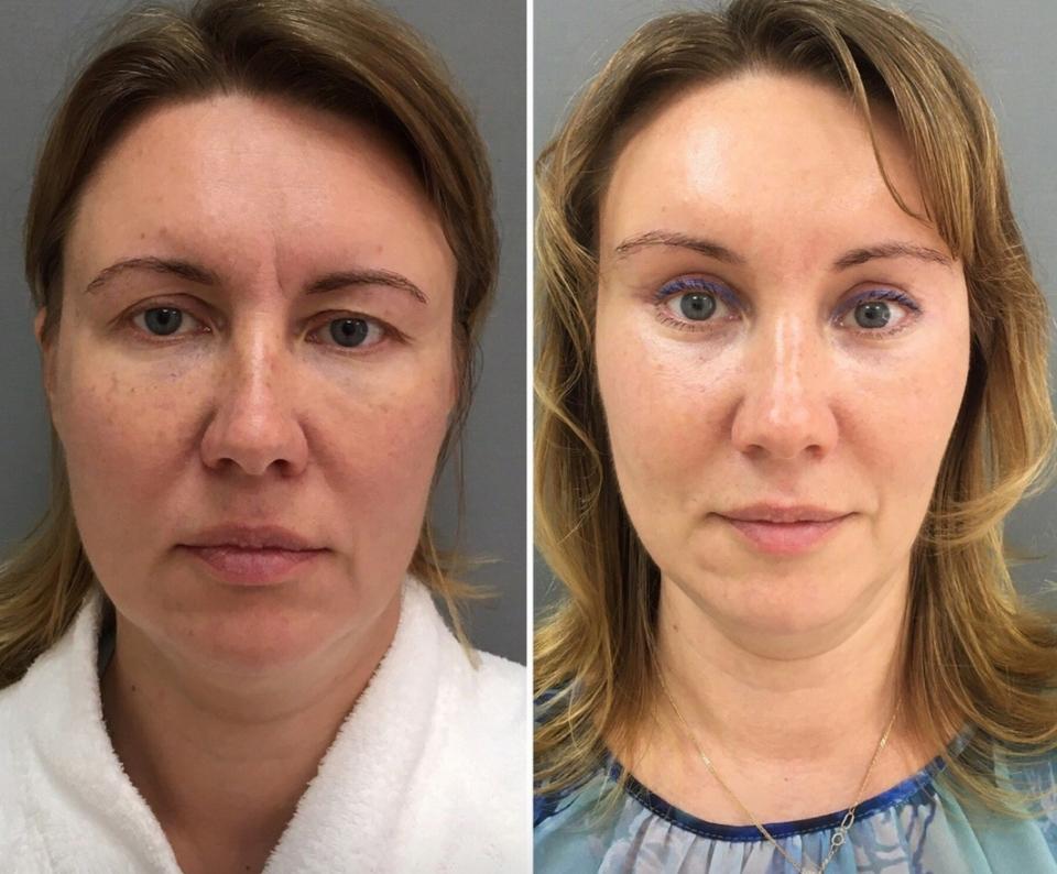 Пациентка до и после комплексного омоложения у доктора Четвериковой