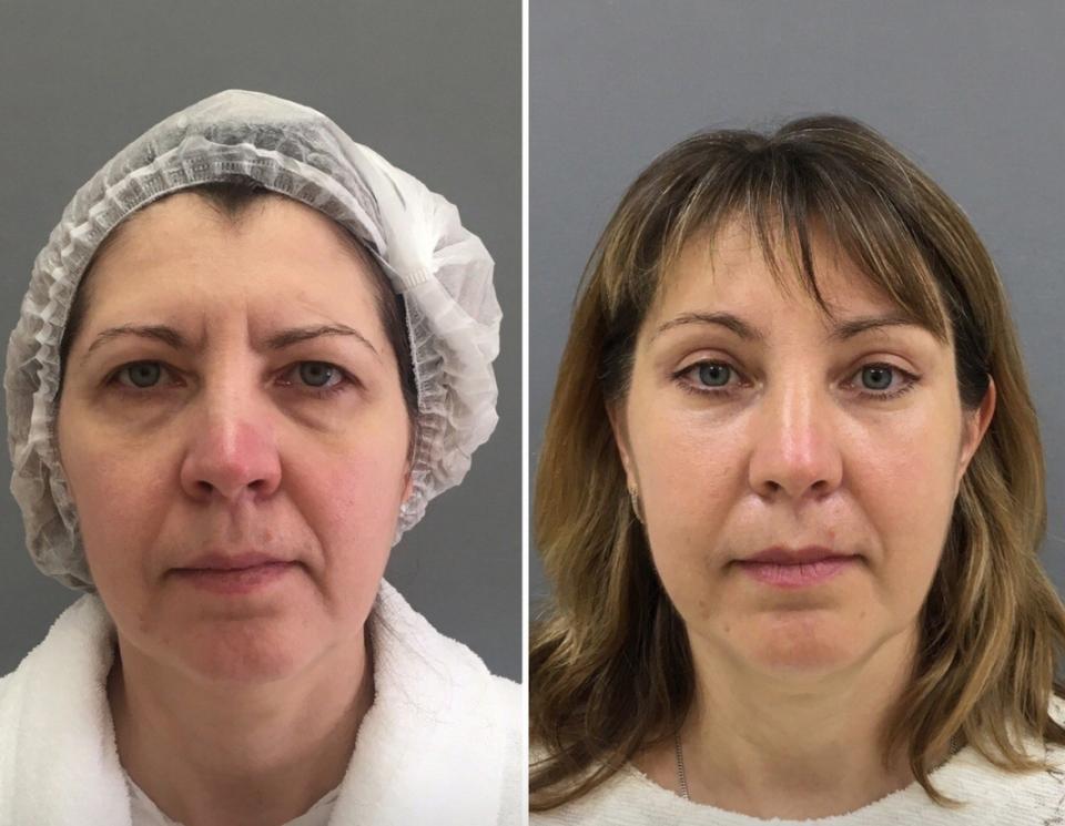 Пациентка до и после комплексной подтяжки лица у доктора Марины Четвериковой