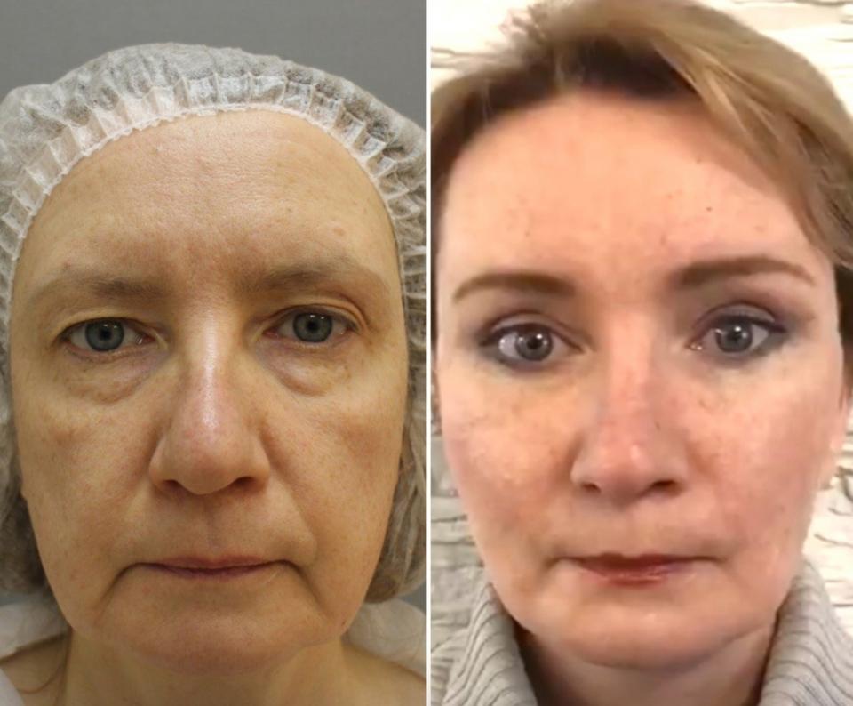 Пациентка до и после комплексной подтяжки лица у доктора Четвериковой