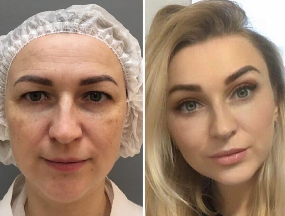 Пациентка до и после комплексной операции у доктора Марины Четвериковой