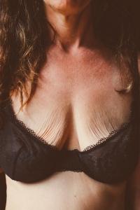 Пластика обвисшей груди