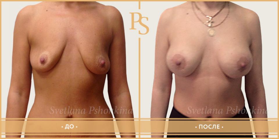 Комбинированная подтяжка с увеличением груди у доктора Светланы Пшонкиной