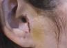 Пациентка осталась без козелка в ухе после ринопластики