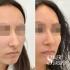 Пациентка доктора Стайсупова до и после коррекции носа