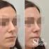 Пациентка доктора Валерия Стайсупова до и после коррекции носа