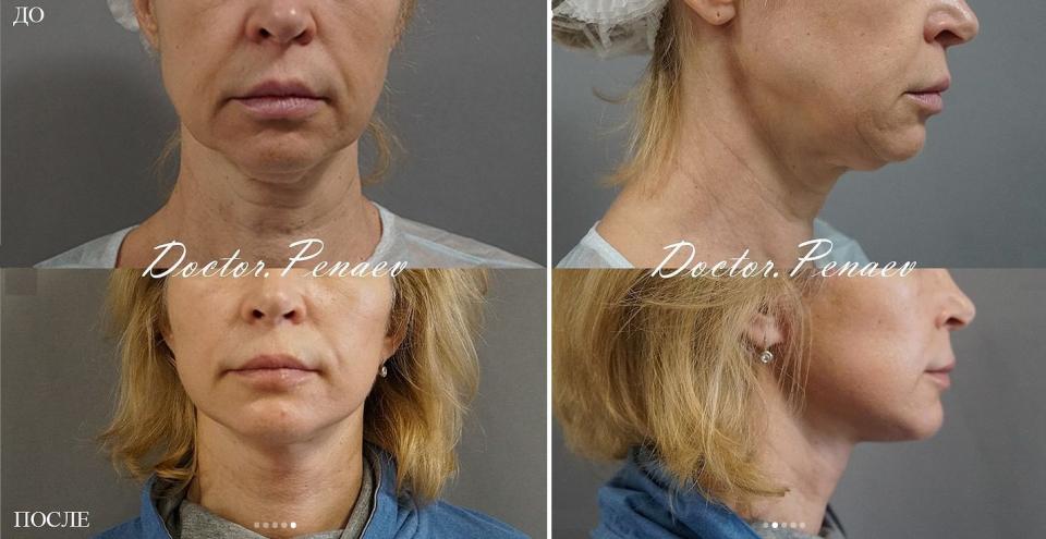 Пациентка доктора Арслана Пенаева до и после омоложения