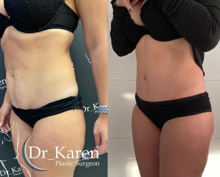 Пациентка пластического хирурга Карена Пайтяна до и после абдоминопластики