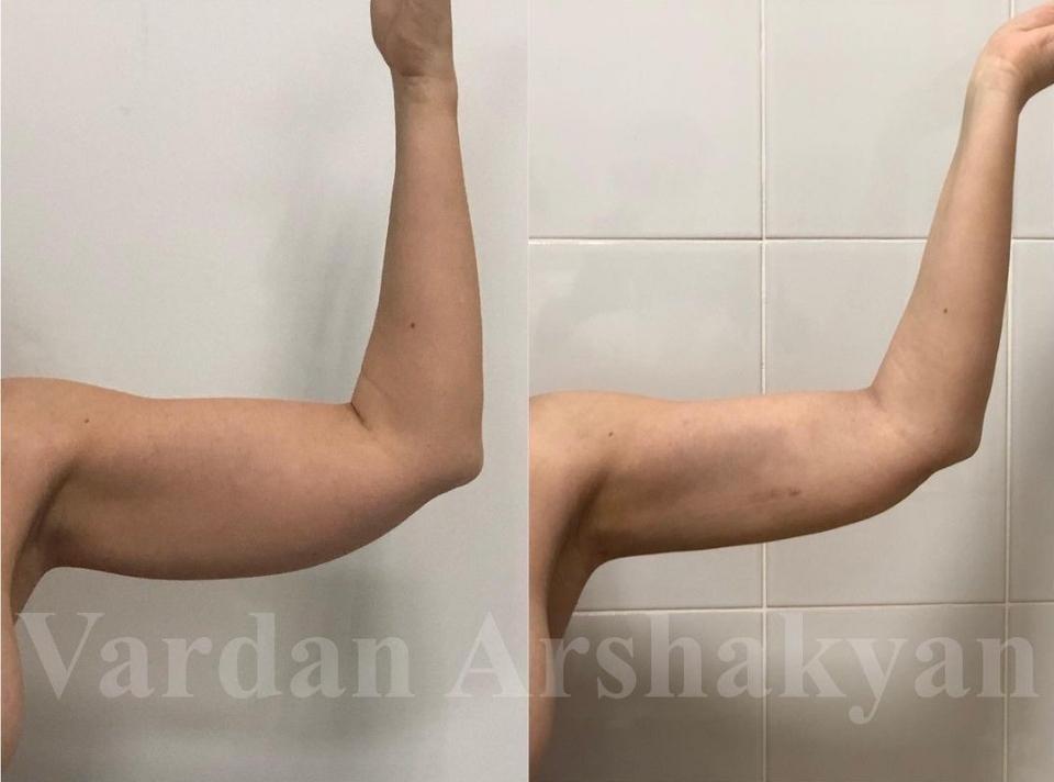 Пациентка до и через 7 дней после BrakhioTite