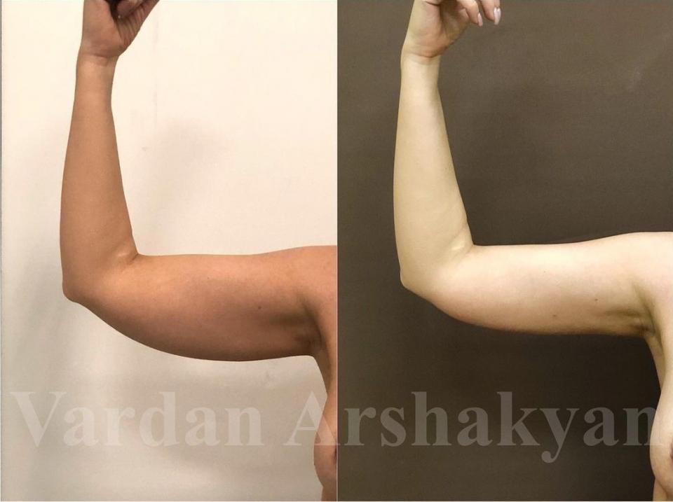 Фото пациентки через 1 месяц после радиочастотной подтяжки рук