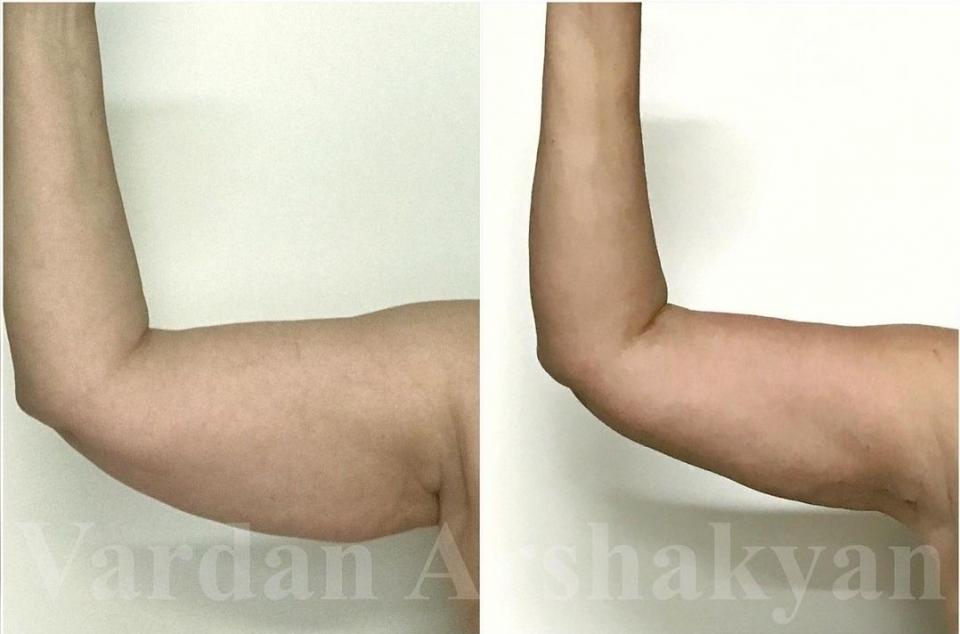 Результат через 6 месяцев после подтяжки рук BrakhioTite