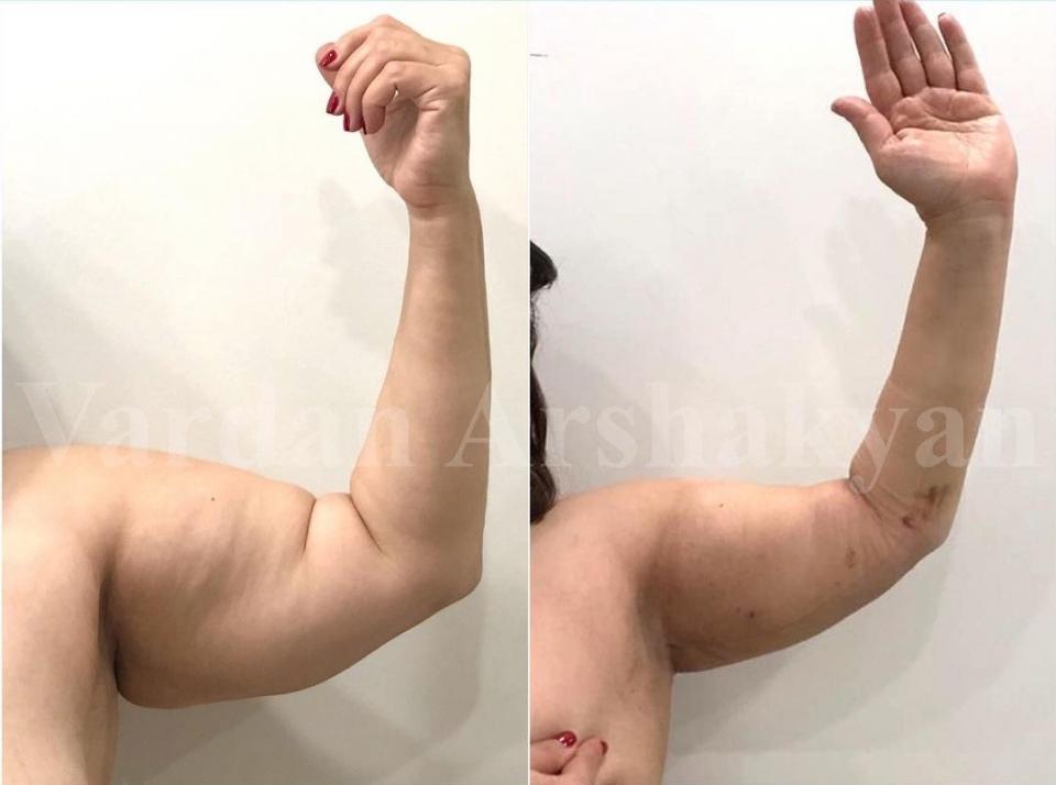 Пациентка доктора Аршакяна до и через 7 дней после операции BrakhioTite