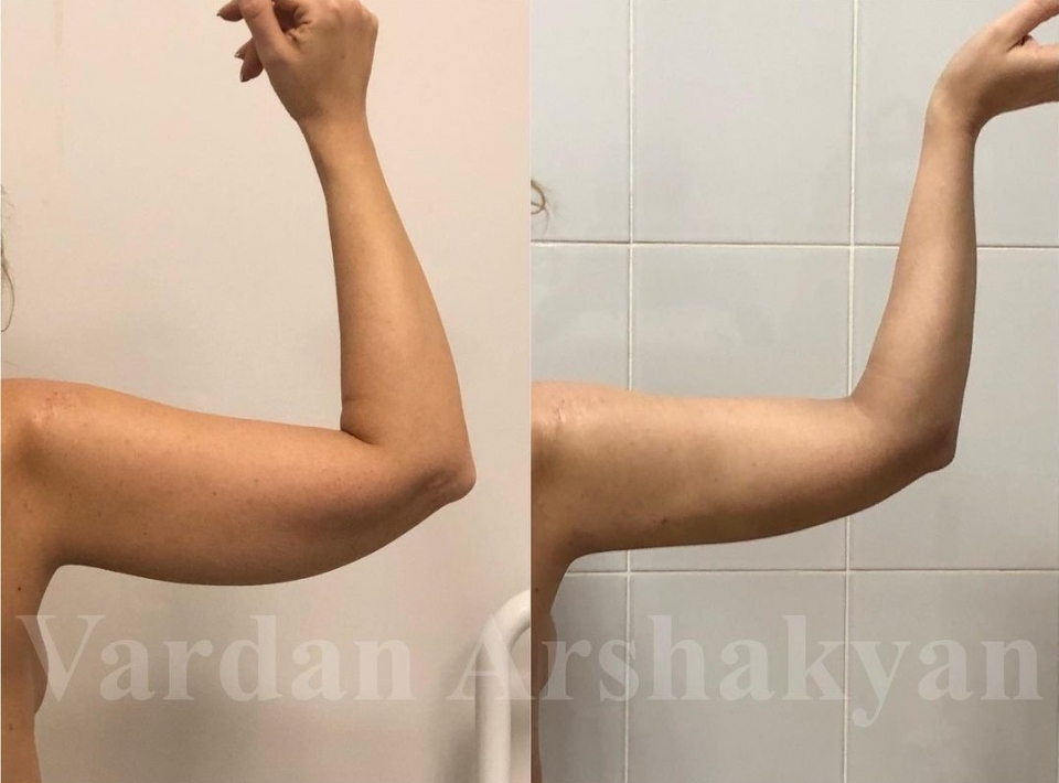 Фото пациентки до и через неделю после операции BrakhioTite