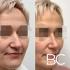 Пациентка пластического хирурга Валерия Стайсупова до и после ринопластики