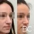 Пациентка пластического хирурга Валерия Стайсупова до и после коррекции носа