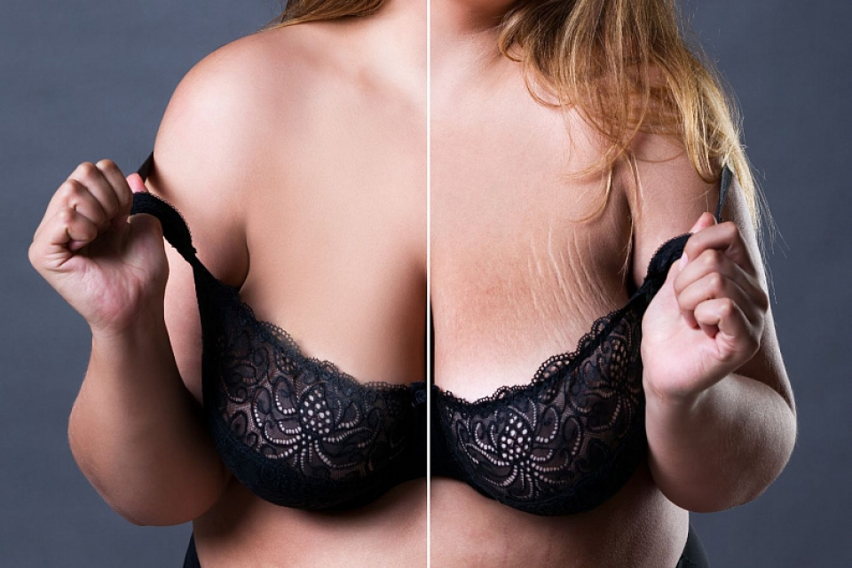 Растяжки на груди после родов