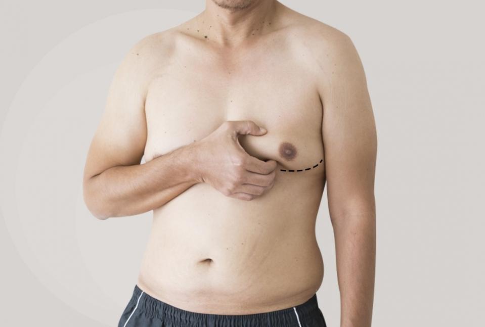 Гинекомастия - уменьшение груди у мужчин