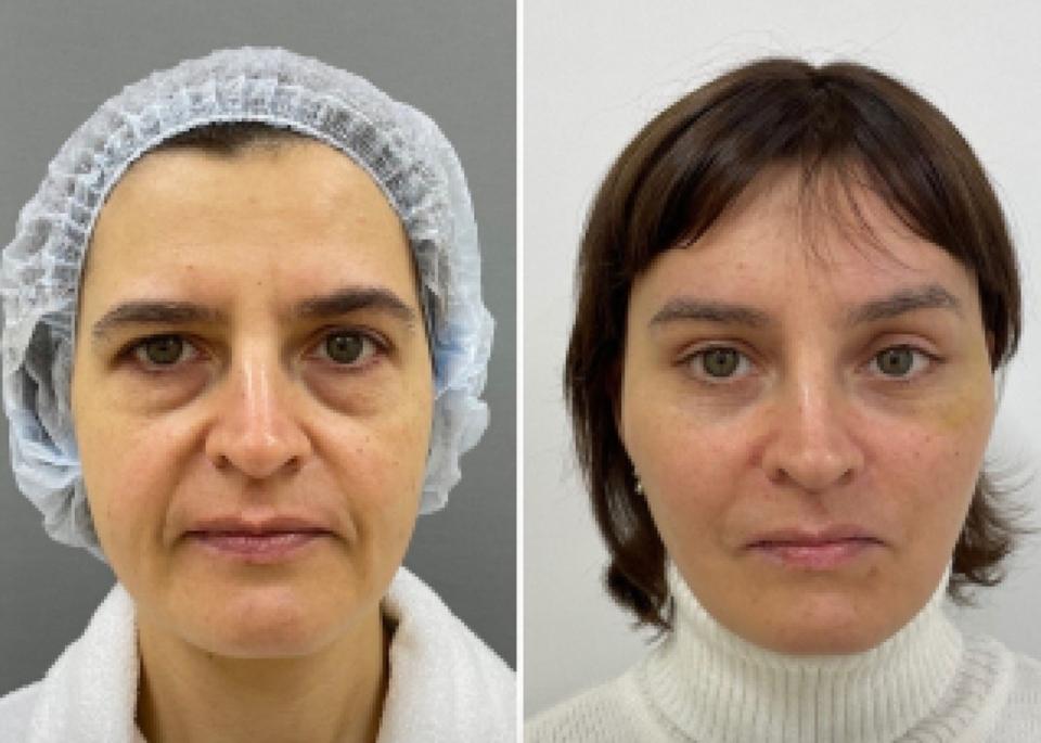 Марина Четверикова периорбитопластика