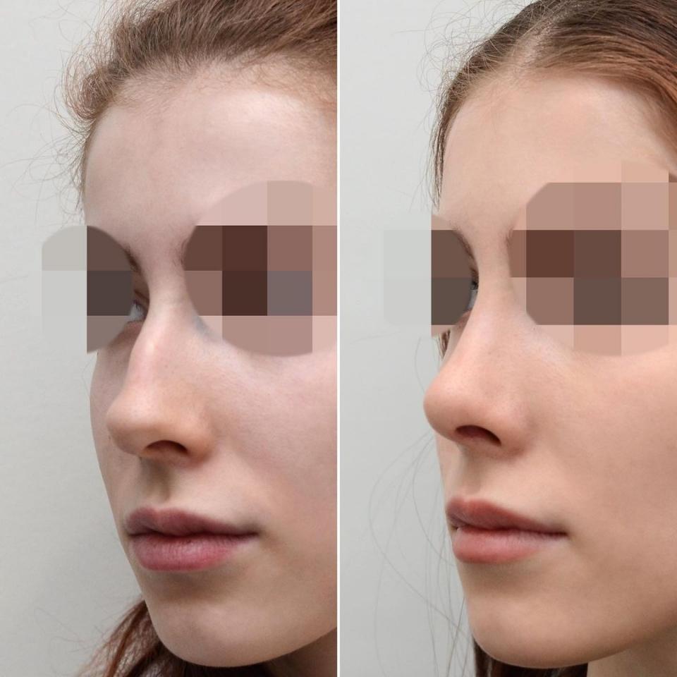 Пациентка доктора Валерия Стайсупова до и после ринопластики