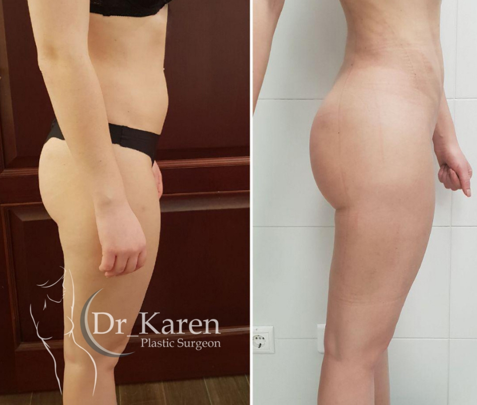 липоскульптура тела Карен Пайтян