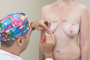 Breast Tite подтяжка груди