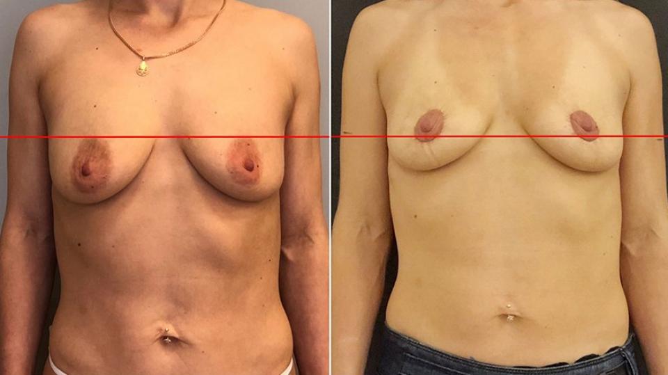 Подтяжка груди Брест Тайт до и после