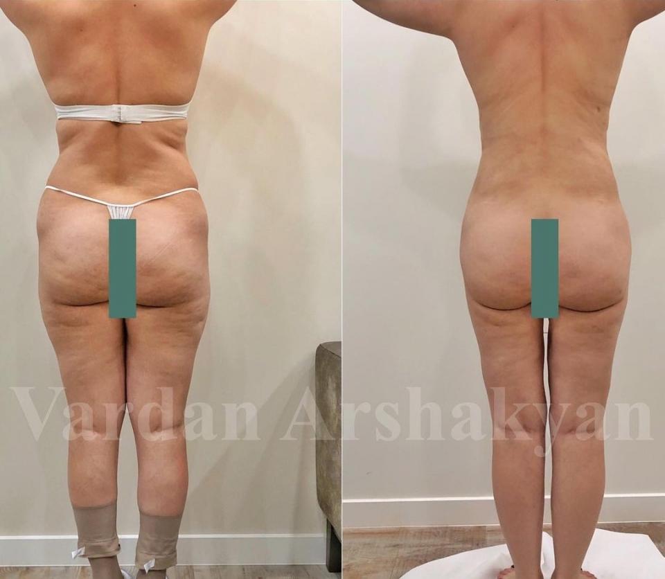 Пациентка доктора Вардана Аршакяна до и после радиочастотного липоскульптурирования тела