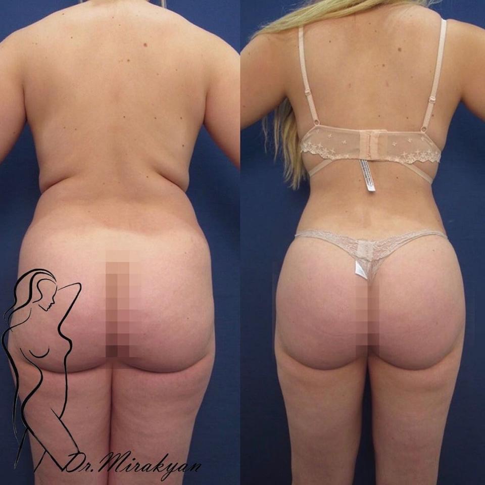 Пациентка доктора Гукаса Миракяна до и после увеличения ягодиц липофилингом