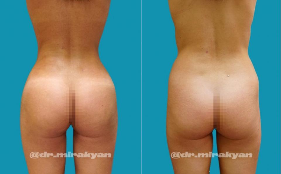 Пациентка доктора Миракяна до и после липофилинга ягодиц