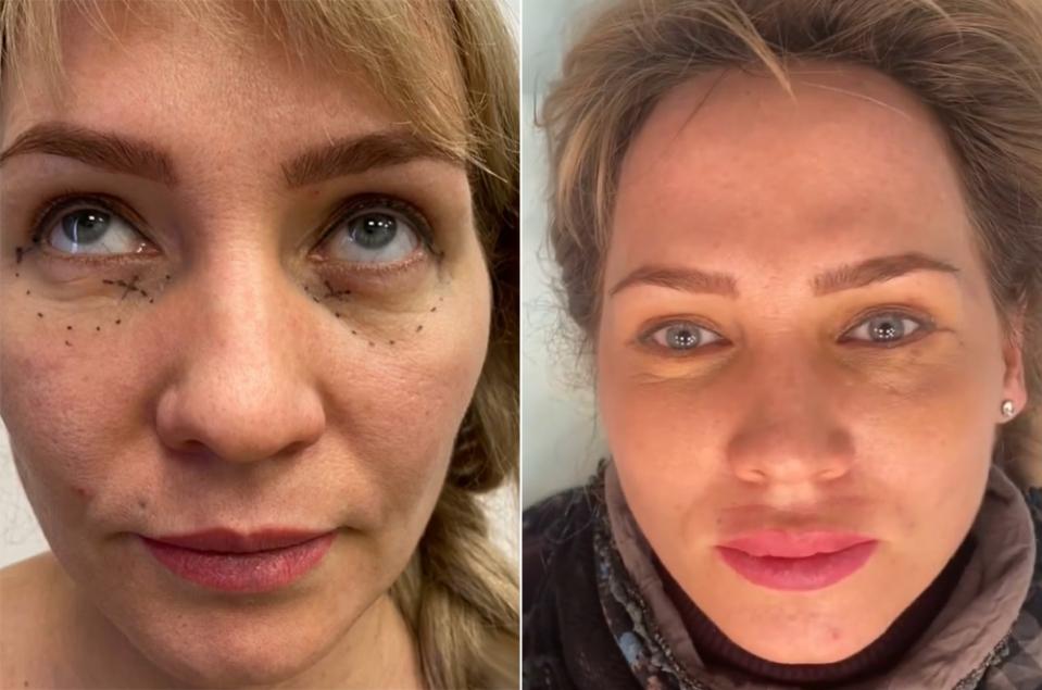 До и после пластики губ
