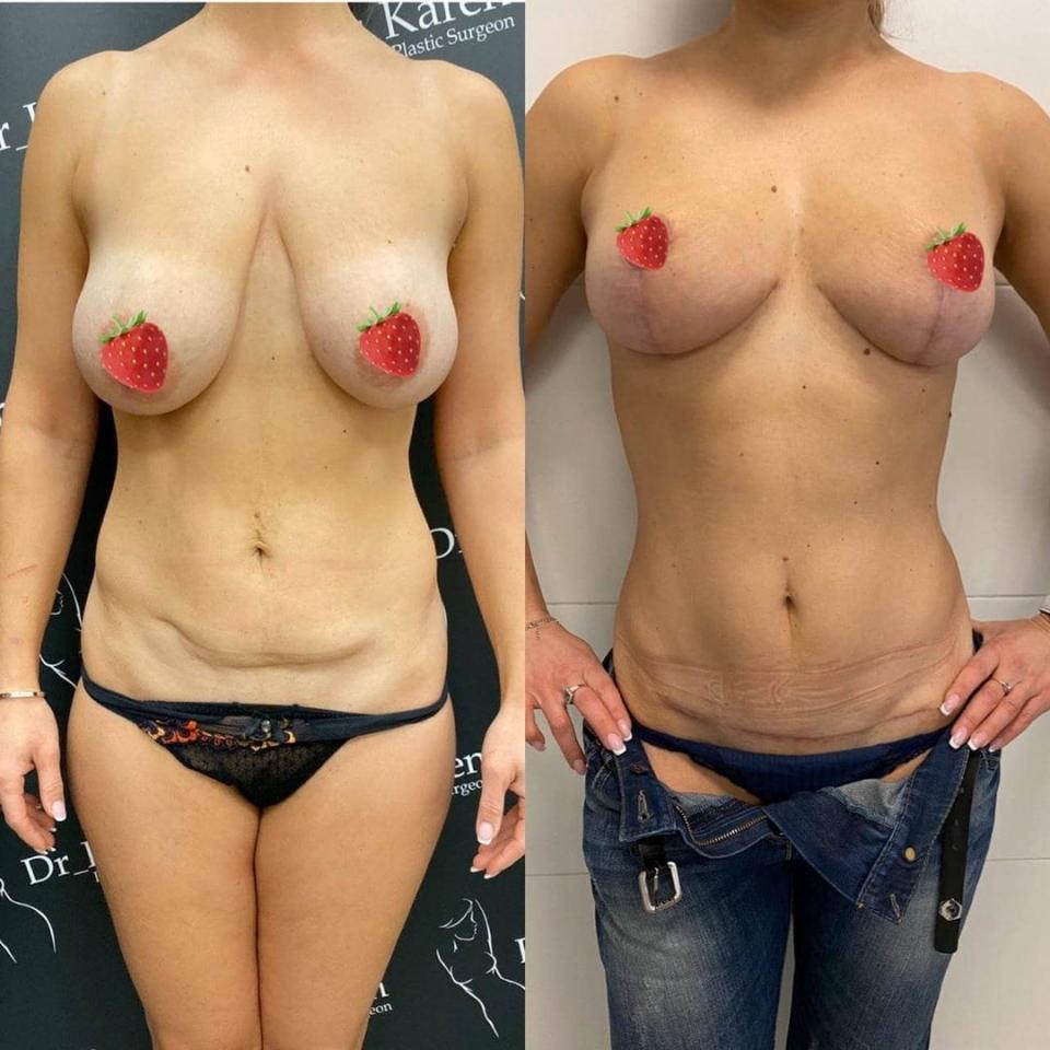 Пациентка до и после подтяжки груди и живота у доктора Карена Пайтяна