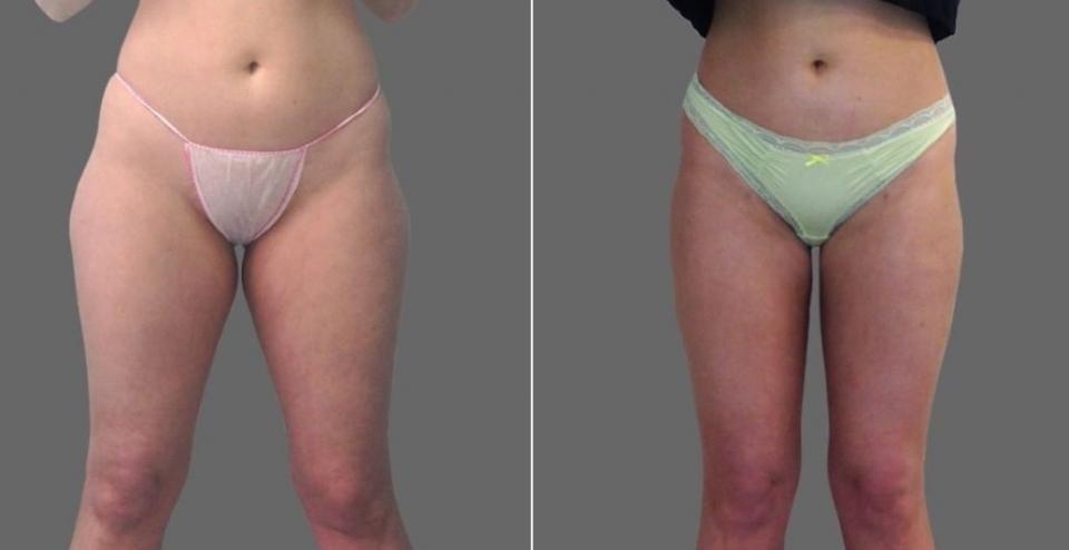 Пациентка до и после RF-липосакции