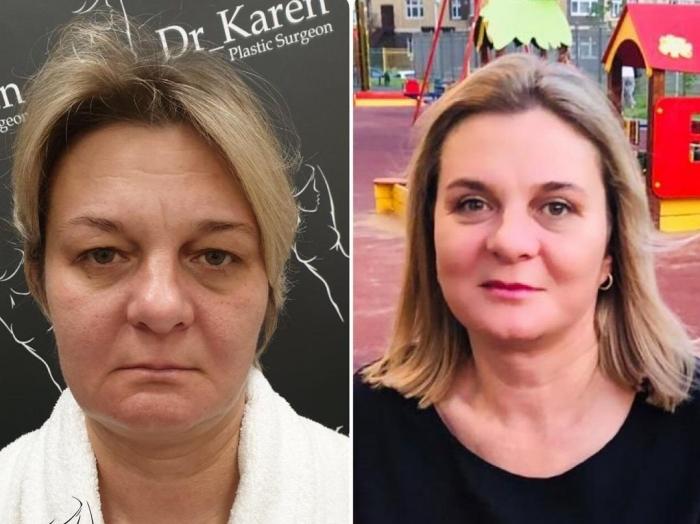 Пациентка пластического хирурга Карена Пайтяна до и после СМАС-лифтинга и блефаропластики