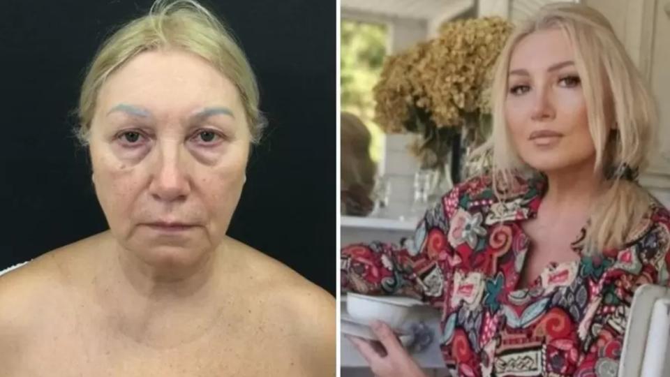 Марина Логинова до и после омолаживающей операции